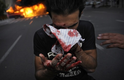 An injured backer of Mir Hossein Mousavi covers his bloodied face during riots in Tehran on June 13, 2009. (OLIVIER LABAN-MATTEI/AFP/Getty Images) #
